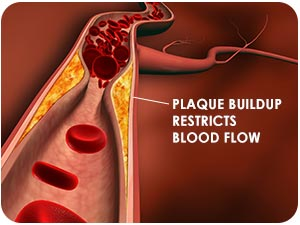 Calcium deposits cause plaque to form blocking blood flow