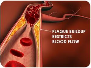 Calcium deposits cause plaque to form blocking blood flow