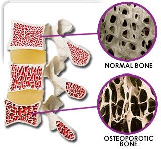 Normal bone density vs osteoporosis